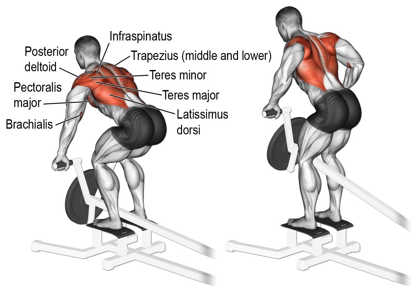 nugaros treniruotė